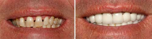Porcelain Tooth Crowns by Dr. Chie Li Ee, DMD - Dentist in Cape May New Jersey