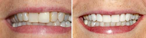 Porcelain Tooth-Colored Fillings by Dr. Chie Li Ee, DMD – Cosmetic Dentist in Cape May New Jersey