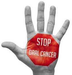 Oral Gum Cancer Screening by Dr. Chie Li Ee, DMD - Dentist in Cape May New Jersey