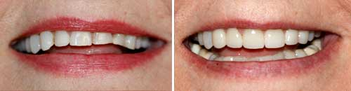 Smile Makeovers by Dr. Chie Li Ee, DMD - Cosmetic Dentist in Cape May New Jersey""